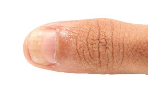 Fungal Nail Infections Can Affect Part Or All Of The Including Plate Bed And